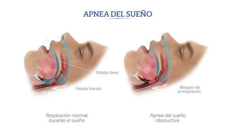 blog-apnea