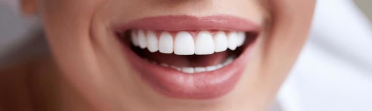 estetica dental madrid