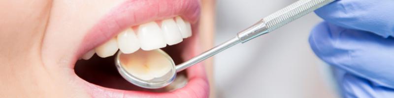 implante dental cuidados dentista